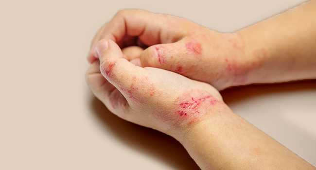 Eczema is a group of skin conditions