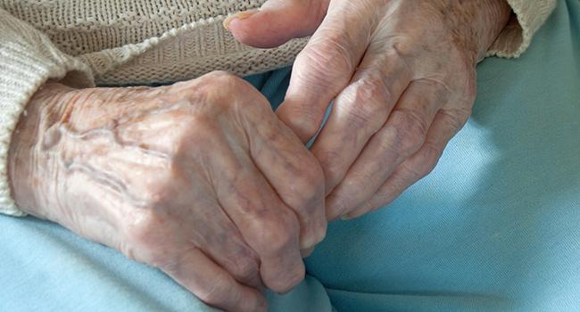 Rheumatoid Arthritis causes pain, deformity, and joint damage